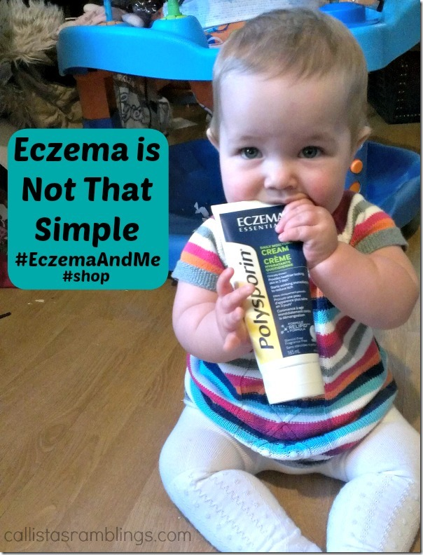 Eczema is Not That Simple (Polysporin #EczemaAndMe #Shop)
